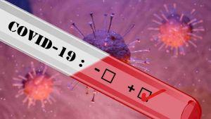 coronavirus (3)